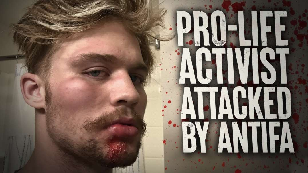 Pro-Life Activist Viciously Attacked By ANTIFA In Portland